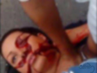 dead lady